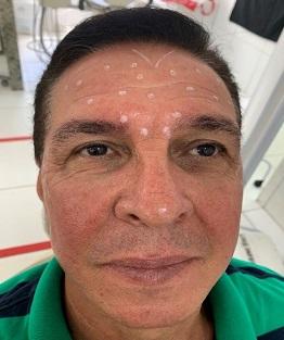 Aplicação da toxina botulínica em pacientes do sexo masculino – relato de caso