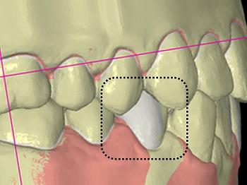 Coluna Point of View – Set-up diagnóstico em Ortodontia. Os princípios básicos continuam na era digital?