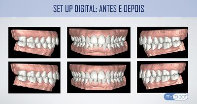 Coluna Ortodontia e Ideias – Tratamento ortodôntico híbrido com associação de técnicas 3D-BOT e alinhadores digitais – relato de caso