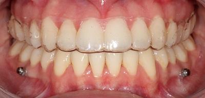 Distalização dos dentes inferiores para o tratamento da má oclusão de Classe III com o auxílio de dispositivos de ancoragem temporária – relato de caso