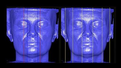 Cirurgia Ortognática – Cirurgia ortognática e Ortodontia guiados pelo diagnóstico craniofacial 3D